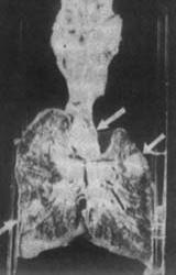 小儿肺结核--预防青春期结核病复燃
